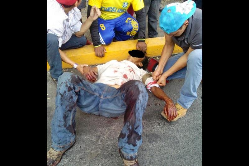 Cada vez es más notoria la carencia de ambulancias que se registra en la capital michoacana (FOTO: FRANCISCO ALBERTO SOTOMAYOR)
