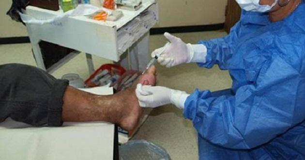 Hasta un 50 por ciento de los pacientes con diabetes mellitus, pueden acabar en amputación del pie diabético