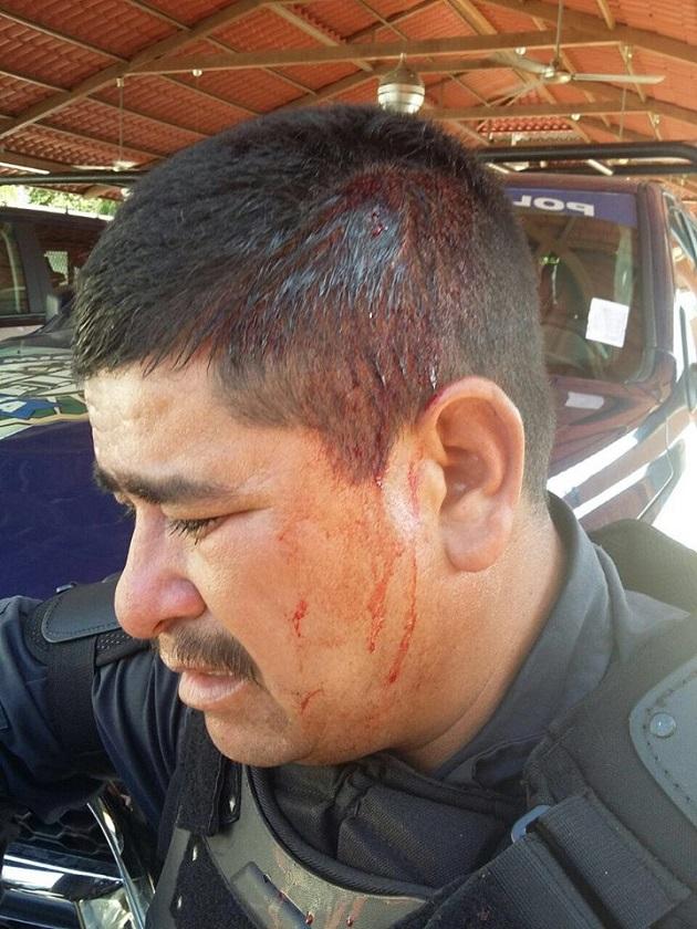Los uniformados recibieron golpes en rostro y cráneo, por lo que  fueron trasladados a recibir atención médica