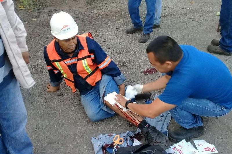 Repentinamente el trabajados fue atacado por un cocodrilo de gran tamaño, el cual le mordió la pierna izquierda
