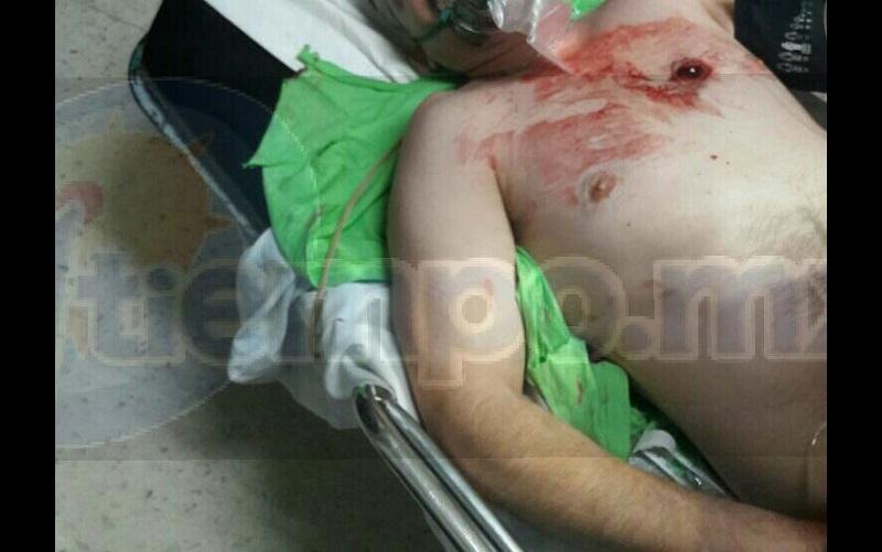 El lesionado fue trasladado a un hospital, donde lo reportan como grave